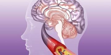 Помощь сосудам головного мозга